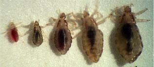 body lice symptoms